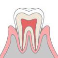 歯周病(軽度)