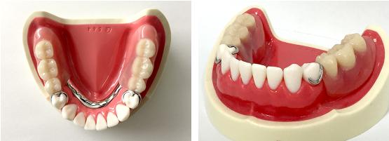 保険適応の義歯