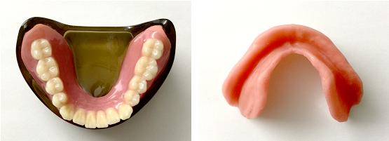 シリコン床義歯